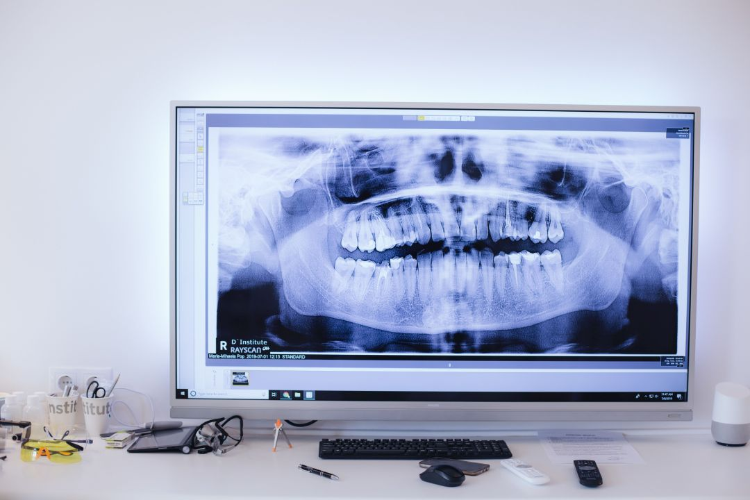 radiologie 3D, clinica dentara D`Institute